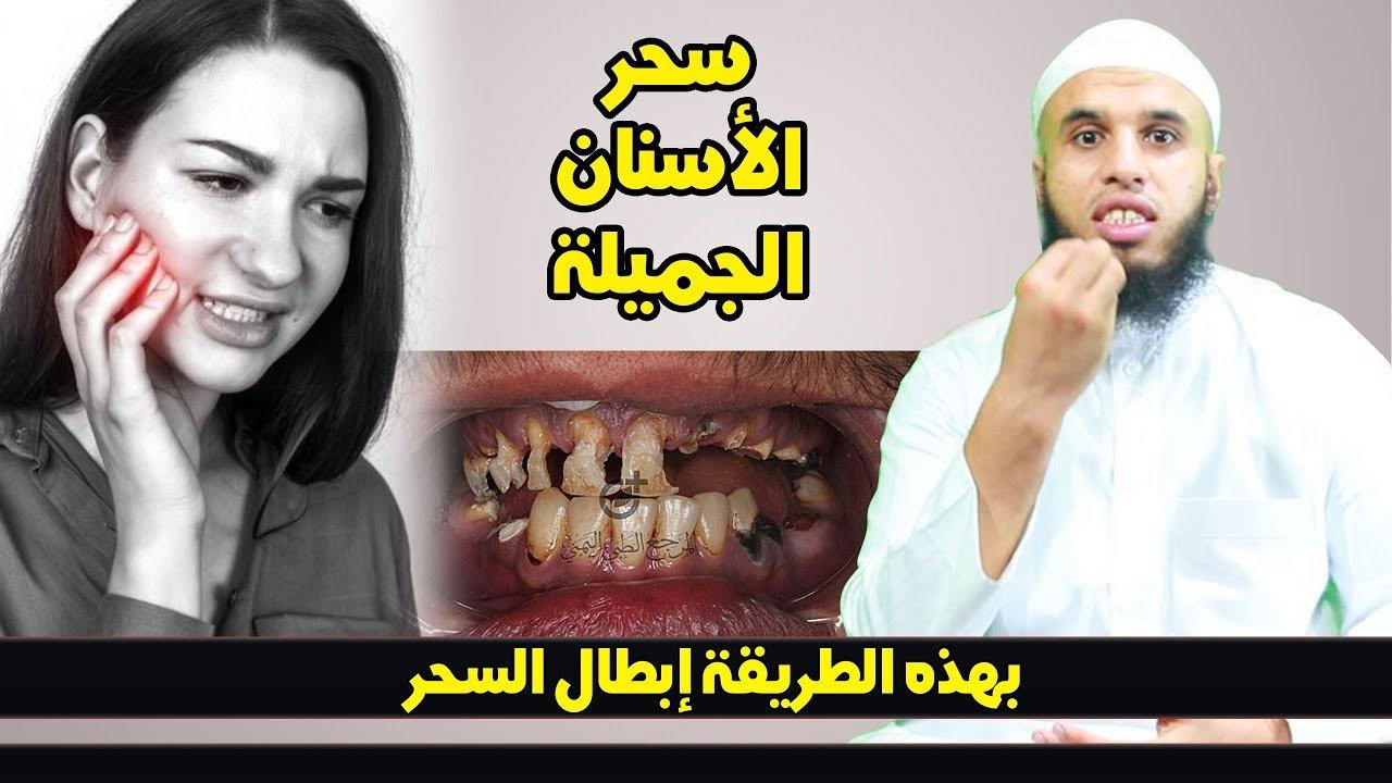 العين والحسد على الاسنان الجميلة...كيفية إبطاله