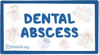 dental abscess - causes, symptoms, diagnosis, treatment, pathology