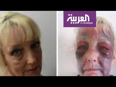 تفاعلكم | صور صادمة.. عجوز بريطانية تتعرض للضرب من صديقها  - نشر قبل 12 دقيقة