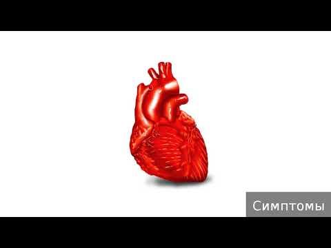 Аневризма сердца. Как лечить аневризму сердца.