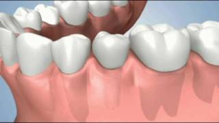 preservation of bone after tooth loss