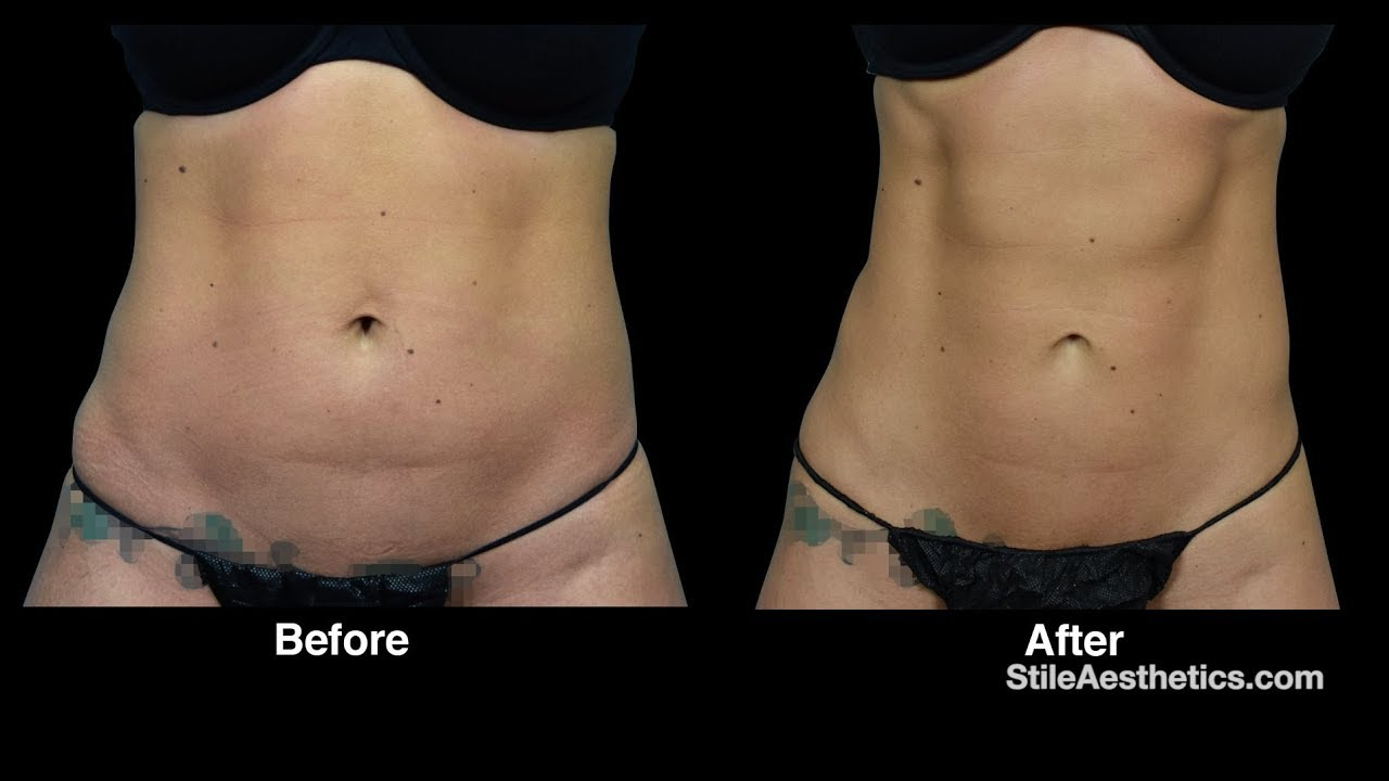 Before coolsculpting after photos and