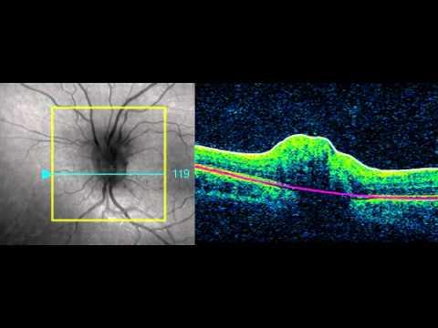 Elevated optic nerve