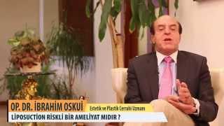 Liposuction Riskli Bir Ameliyat mıdır? - Op.Dr.İbrahim Oskui