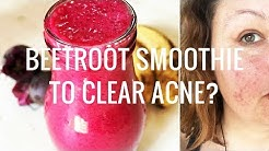 hqdefault - Beetroot And Carrot Juice For Acne