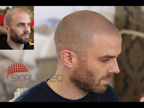 Scalp Micropigmentation Results From Skalptec - Watch Music Producer Amazing Outcome