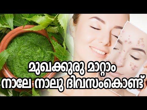 മുഖക്കുരു-മാറ്റാം-നാലേ-നാലു-ദിവസംകൊണ്ട്healthy-kerala- -skin-care- -health-tips- -beauty-tips