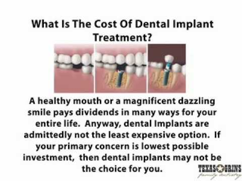 What Is The Cost Of Dental Implant Treatment? - YouTube