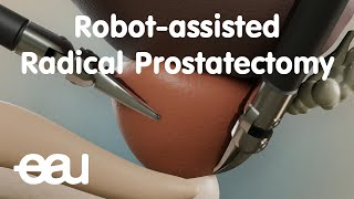 Robot-assisted Radical Prostatectomy (RARP)