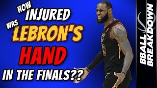 How Injured Was LeBron's Hand In The Finals?