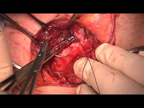 "Thyroidectomy -  ""How I do it""  by David Phillips"