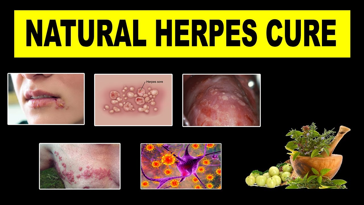 Herpes Cure 2018 Updates | Holistic Cure For Herpes - YouTube