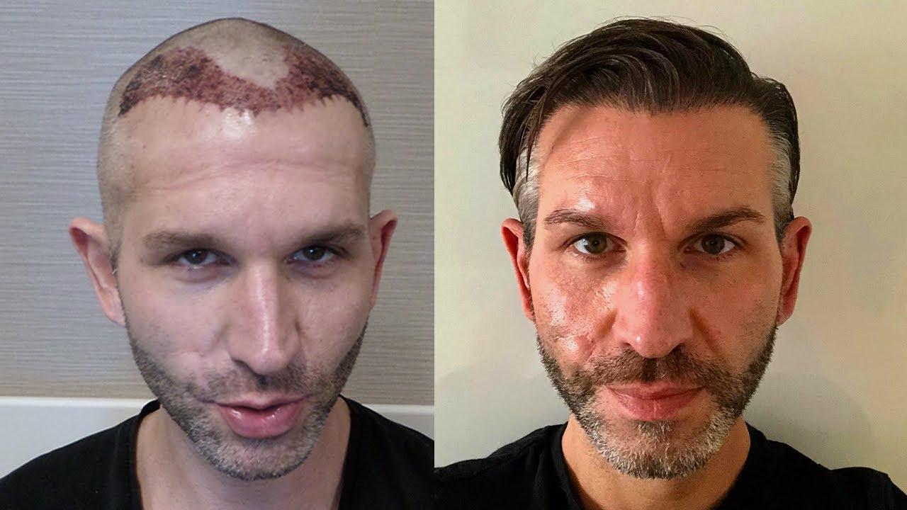 Haartransplantation erfahrungen Meine Haartransplantation