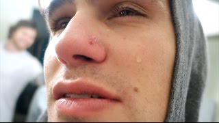 REMOVING HIS INFECTED PIERCING!! (HE CRIES!)