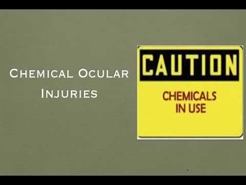 Chemical & Physical ocular injury