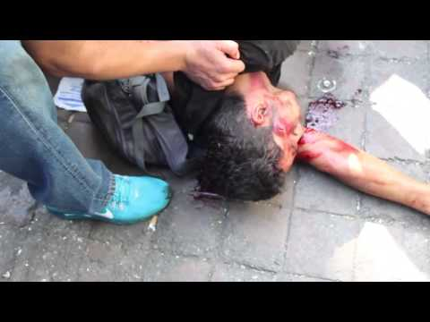 Young man is shot by Venezuelan national guards during protests