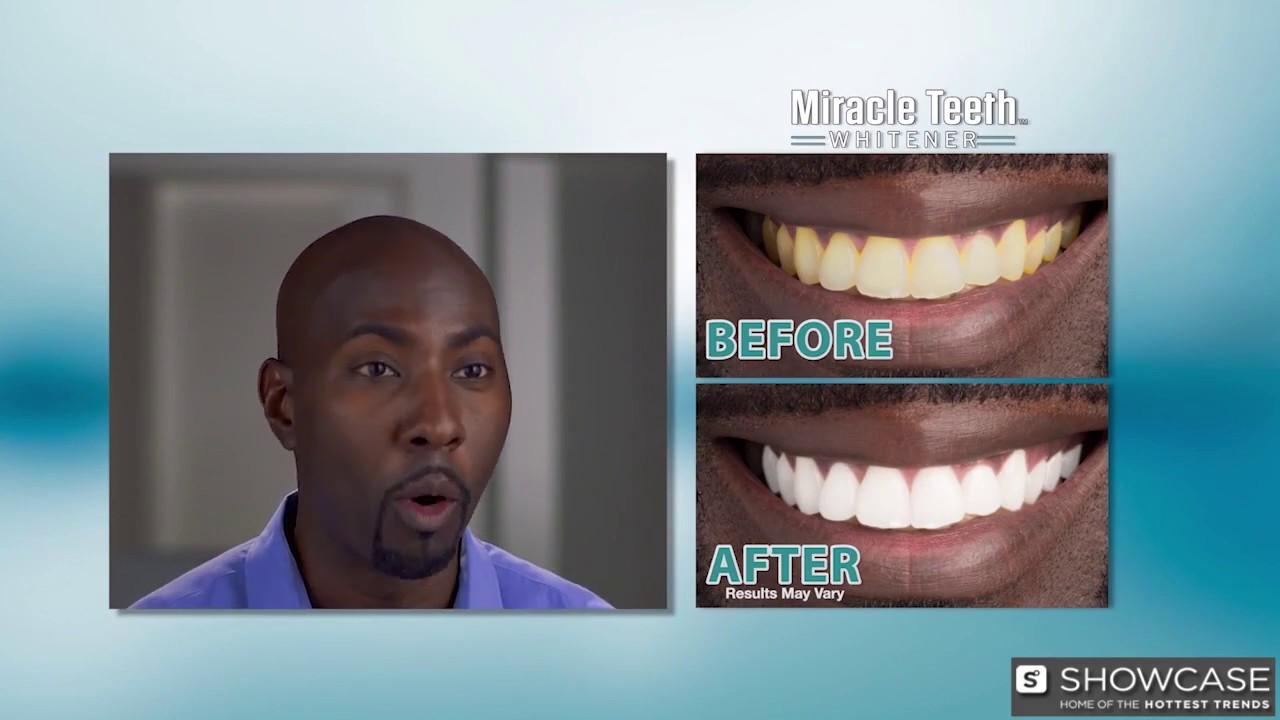 Miracle Teeth Whitener Youtube