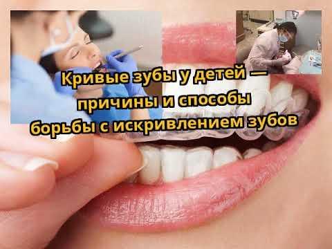 Кривые зубы у детей — причины и способы борьбы с искривлением зубов