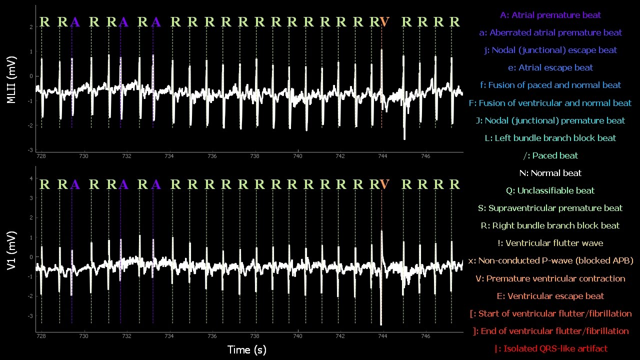 RealTime Electrocardiogram MIT-BIH Arrhythmia Database N°118 with tag  annotations
