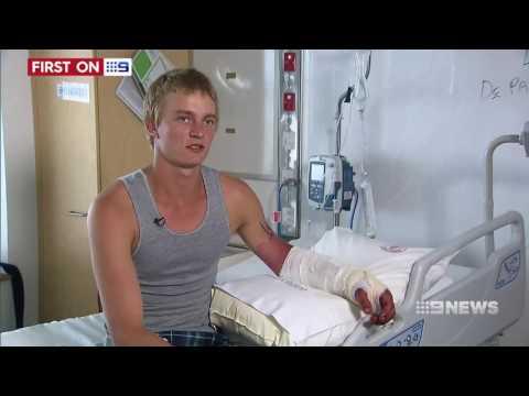 Crocodile Attack | 9 News Perth