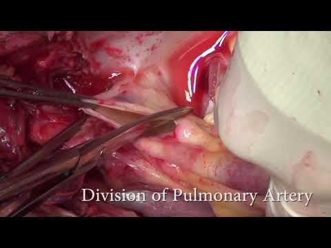 Toronto Lung Transplant Program Donor Lung Retrieval