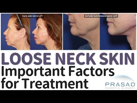 Loose Neck Skin - Surgical and Non-Surgical Treatment Options