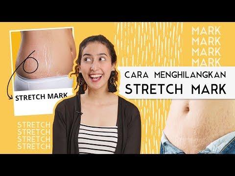 cara menghilangkan stretch mark, cara menghilangkan stretch mark secara alami, cara menghilangkan st.