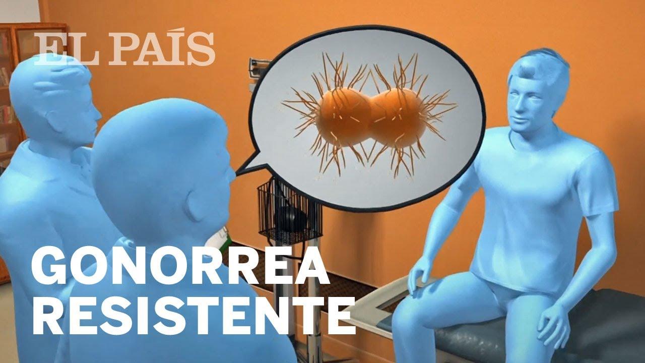uretritis en hombres periodismo