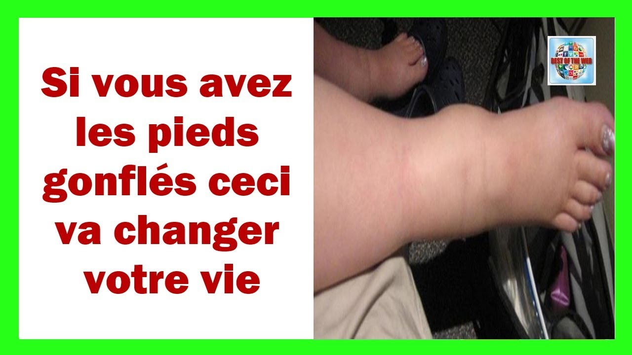 pied gonfle remede