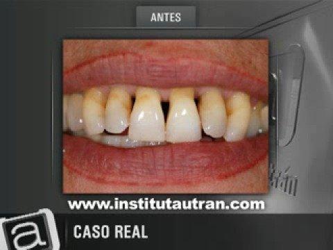 cuanto cuesta una limpieza dental profunda en tijuana