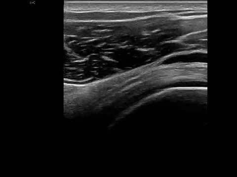 Subacromial-subdeltoid bursa ultrasound - YouTube
