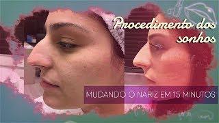 Baixar RINOMODELAÇÃO -SEM CORTE, SEM CIRURGIA, SEM SANGUE - PREENCHIMENTO DO NARIZ