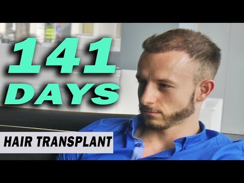 FUE Hair Transplant 141 Days (post op) Istanbul, Turkey GROWTH STAGE
