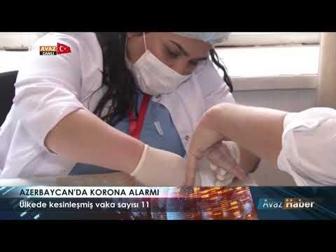 TRT AVAZ HABER  - AZERBAYCAN'DA KORONA ALARMI