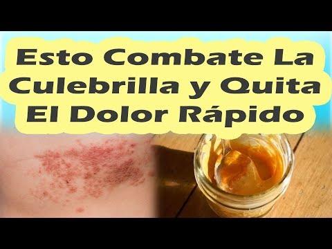 ESTO COMBATE LA CULEBRILLA Y QUITA EL DOLOR RÁPIDAMENTE Remedios Caseros Para La Culebrilla