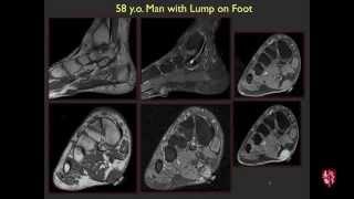 Radiology Boards Prep - MSK Cases - 2015 Edition