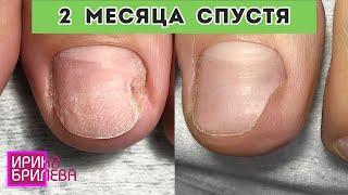 ПЕДИКЮР с онихолизисом 2 МЕСЯЦА спустя Чем пользоваться при онихолизисе Ирина Брилёва