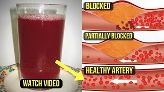 Clinically Approved: Just 1 Juice will Unclog Arteries, lower blood pressure & lose weight