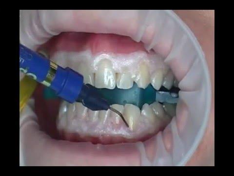 Teeth Bleaching Proses Memutihkan Gigi Youtube