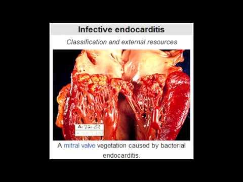 Bacterial Endocarditis - Splinter hemorrhages in ...