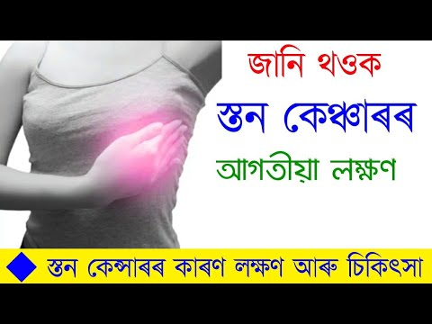 breast-cancer-cause-sign-symptoms-&-early-warning-sign-and-treatment-in-assamese-|-স্তন-কেন্সাৰ