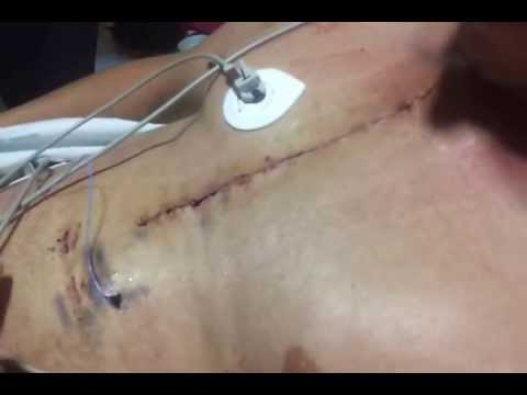 GRAPHIC. Pacing wire removal. Openheart surgrey - YouTube