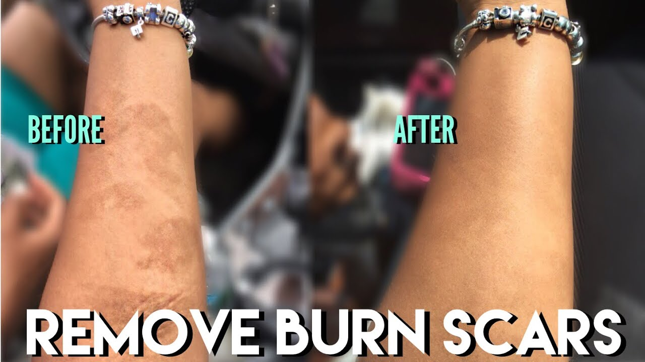 Remove Burn Scars Fast You