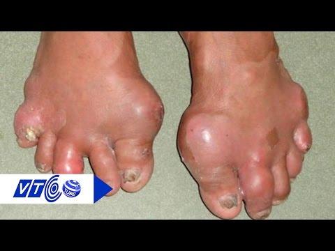 Điều trị bệnh gout bằng Đông Y hay Tây Y? | VTC