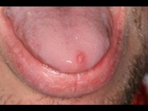 Herpes On The Tongue? 1