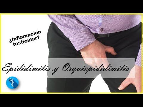 Epididimitis y orquiepididimitis inflamaci n y dolor testicular agudo