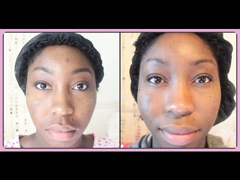 PMD Personal Microdermabrasion | 3 WEEKS | REVIEW + DEMO