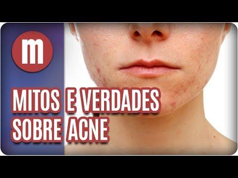 Mitos e verdades sobre acne - Mulheres (23/02/18)