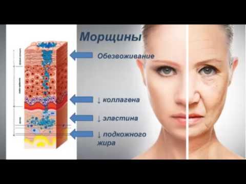 Люминес - взгляд врача.  Варвара Веретюк. Эфир от 28 02 2017