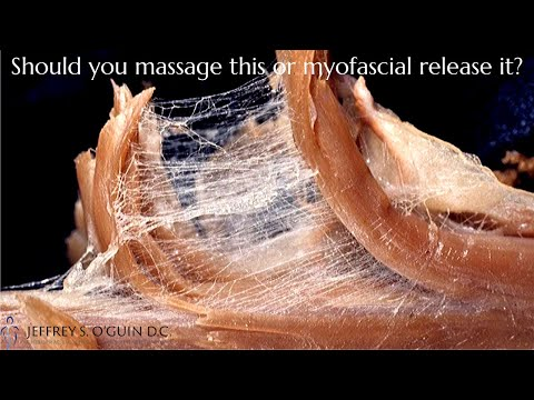 What Is Myofascial Release | What's The Difference Between Myofascial Release Vs. Massage